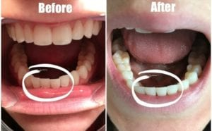 Smile Direct Club Cracked Aligner
